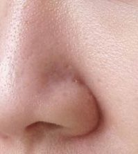 Simple Home Remedies for Open Pores