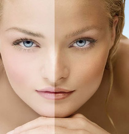 Home Remedies for Skin Whitening in Hot Weather